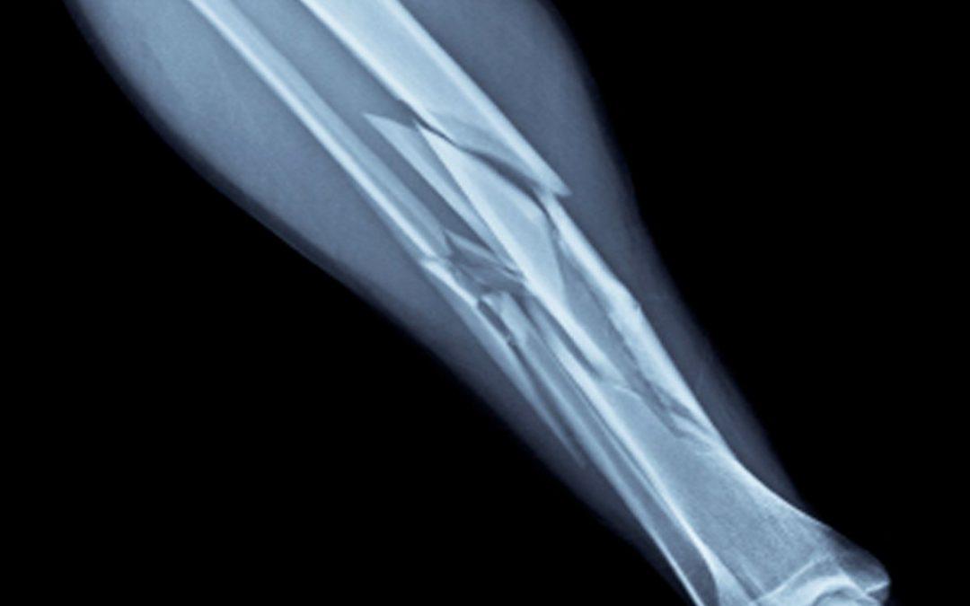 How to Handle a Broken Bone
