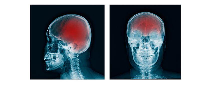 How Can You Protect Yourself From a Traumatic Brain Injury?