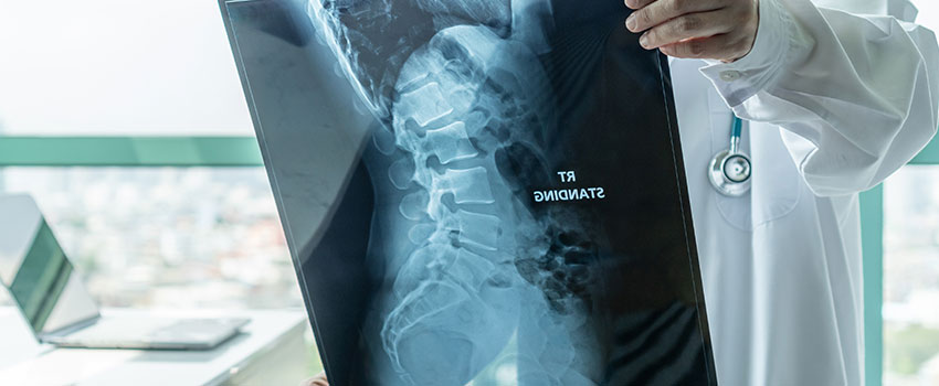 Is It Safe for My Child to Get an X-ray?
