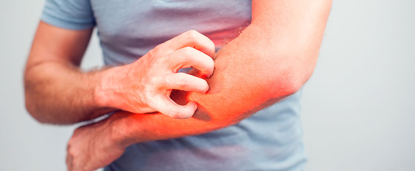 What Should I Know About Rashes?
